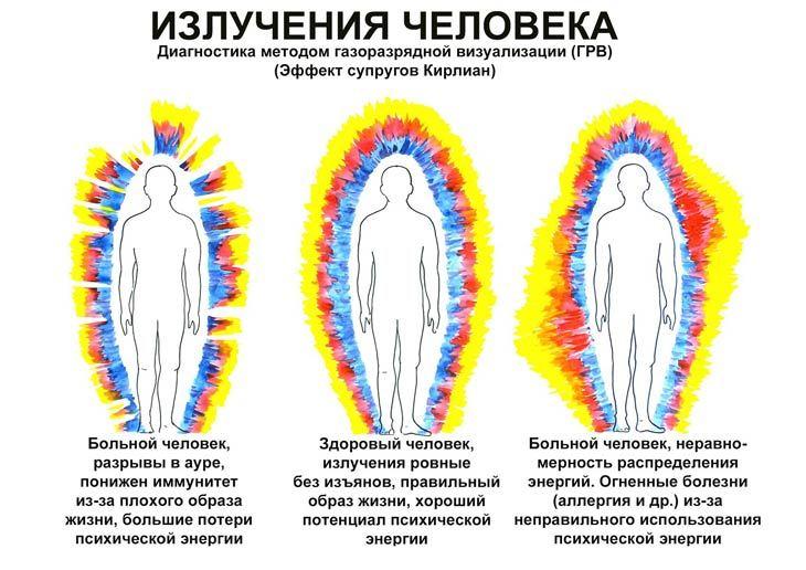 Диагноз по ауре